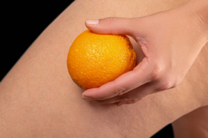 pressoterapia e cellulite